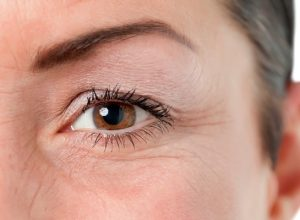 Koyu Göz Altları İçin Bakım Önerileri